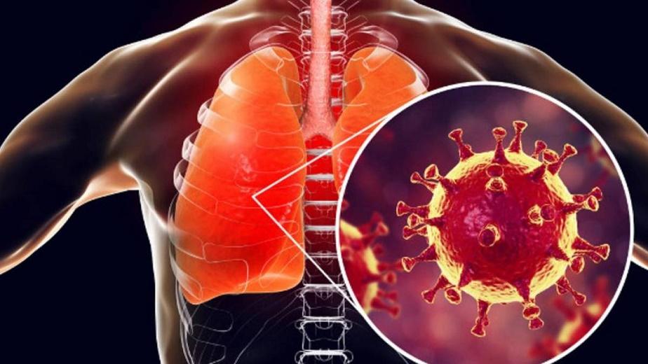 Saiba o que a covid-19 causa nos pulmões