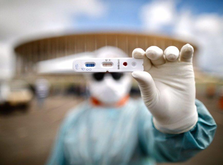 Anvisa libera testes rápidos de covid-19 em farmácias