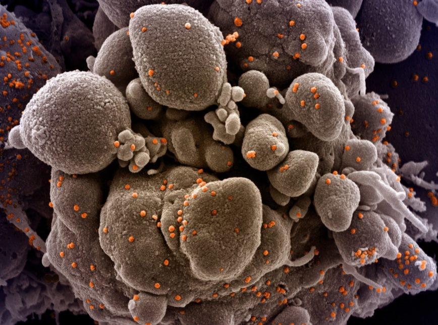 Mundo ultrapassa 350 mil mortes por coronavírus; Brasil ultrapassou 24 mil óbitos